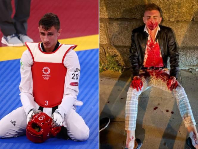 """Ierse olympiër vreselijk toegetakeld in massale vechtpartij tijdens avondje stappen: """"Hij zei: 'Mijn fout, verkeerde persoon' en liep naar de volgende"""""""