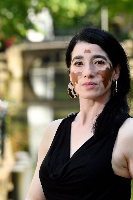 Padminie (49) veranderde compleet van huidskleur: 'Was tot mijn 25ste nog helemaal bruin'