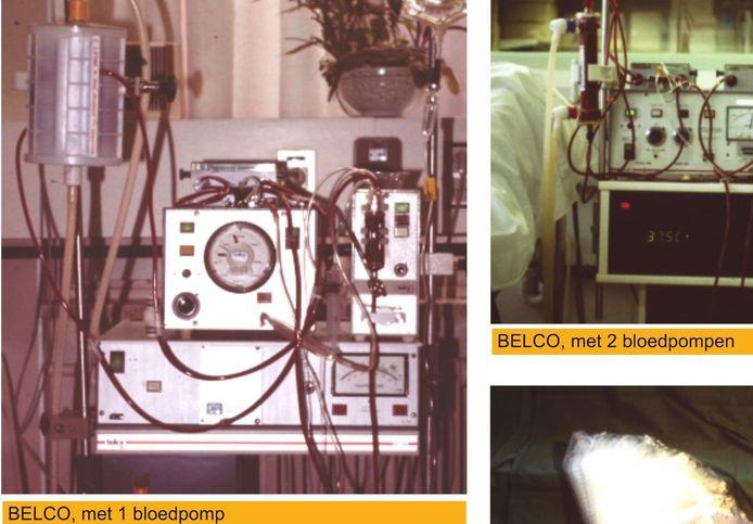 Het eerste dialysetoestel, 50 jaar geleden