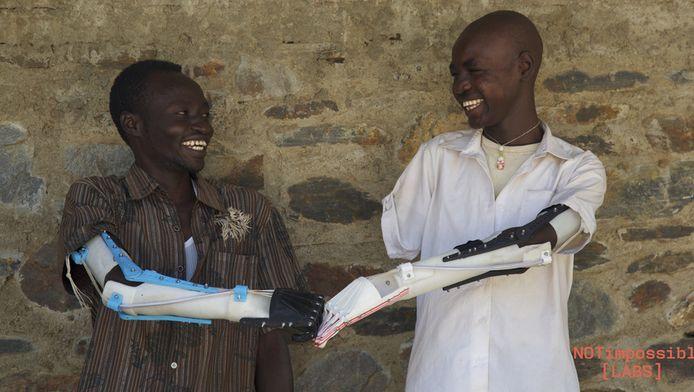 Not Impossible Labs kwam uiteindelijk tot een prothese die 73 euro kost en die in zes uur geprint kan worden.