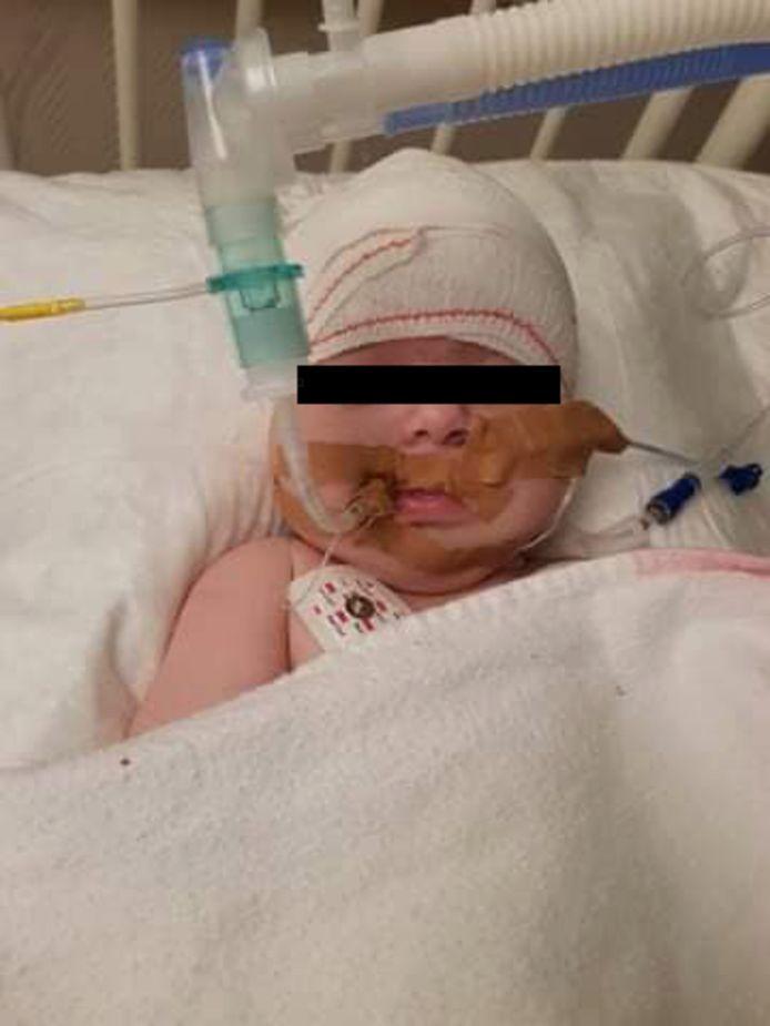 Milane avant son opération. À présent, la petite fille va mieux.