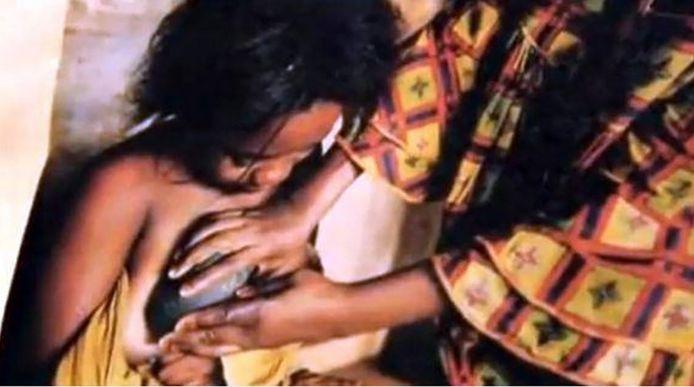 Een jong meisje in Kameroen ondergaat de gruwelpraktijk van het 'borststrijken' met hete stenen.