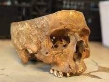 Onderzoek naar 'kringloop-schedel' in Twello richt zich op vaststellen leeftijd