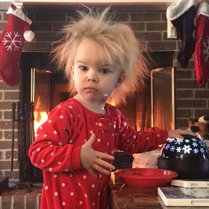 Zoey, 5 ans, souffre d'une maladie génétique rare qui rend ses cheveux fragiles et incoiffables.