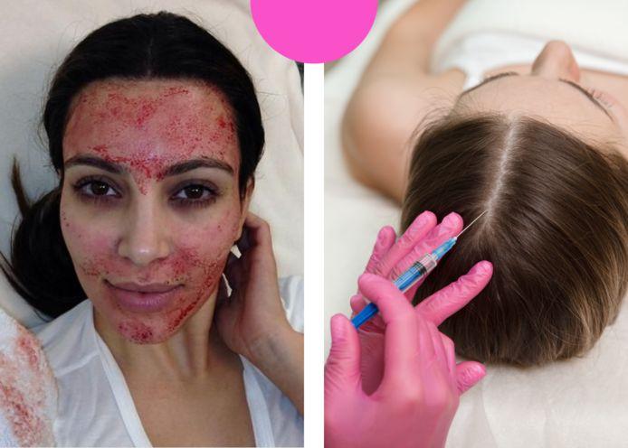 Links: Kim Kardashian met haar 'vampire facial'. Rechts: foto ter illustratie van PRP-behandeling tegen haarverlies.
