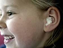 Eén op de vijf kinderen lijdt al op jonge leeftijd aan gehoorverlies