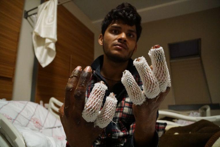 Een Pakistaanse vluchteling die via de besneeuwde bergen Turkije inkwam toont zijn bevroren handen. Beeld Melvyn Ingleby