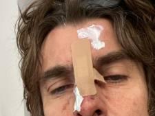 """Liam Gallagher toont zwaar gehavend gezicht op Twitter: """"Ik ben uit een helikopter gevallen"""""""