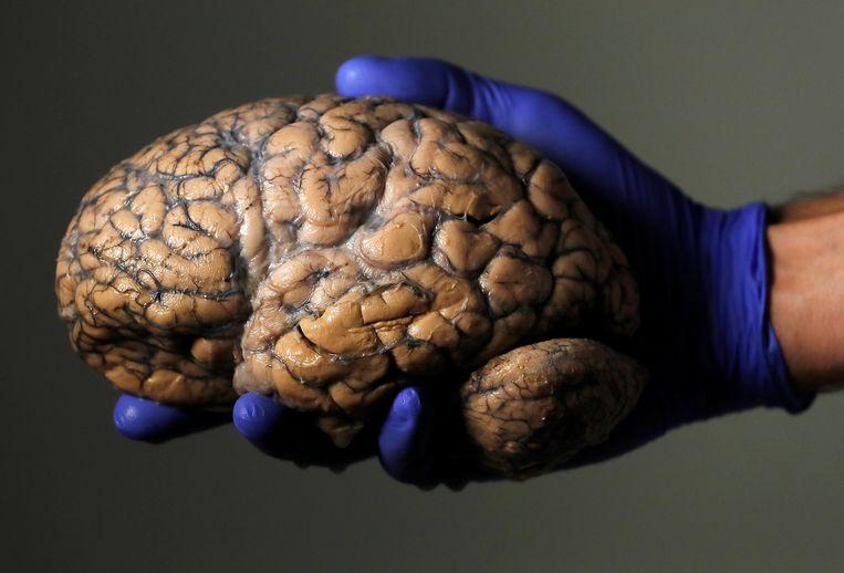 Het menselijke brein is geen statische, grijze brij maar plastisch; het brein blijft zich doorlopend ontwikkelen en vernieuwen. Beeld REUTERS
