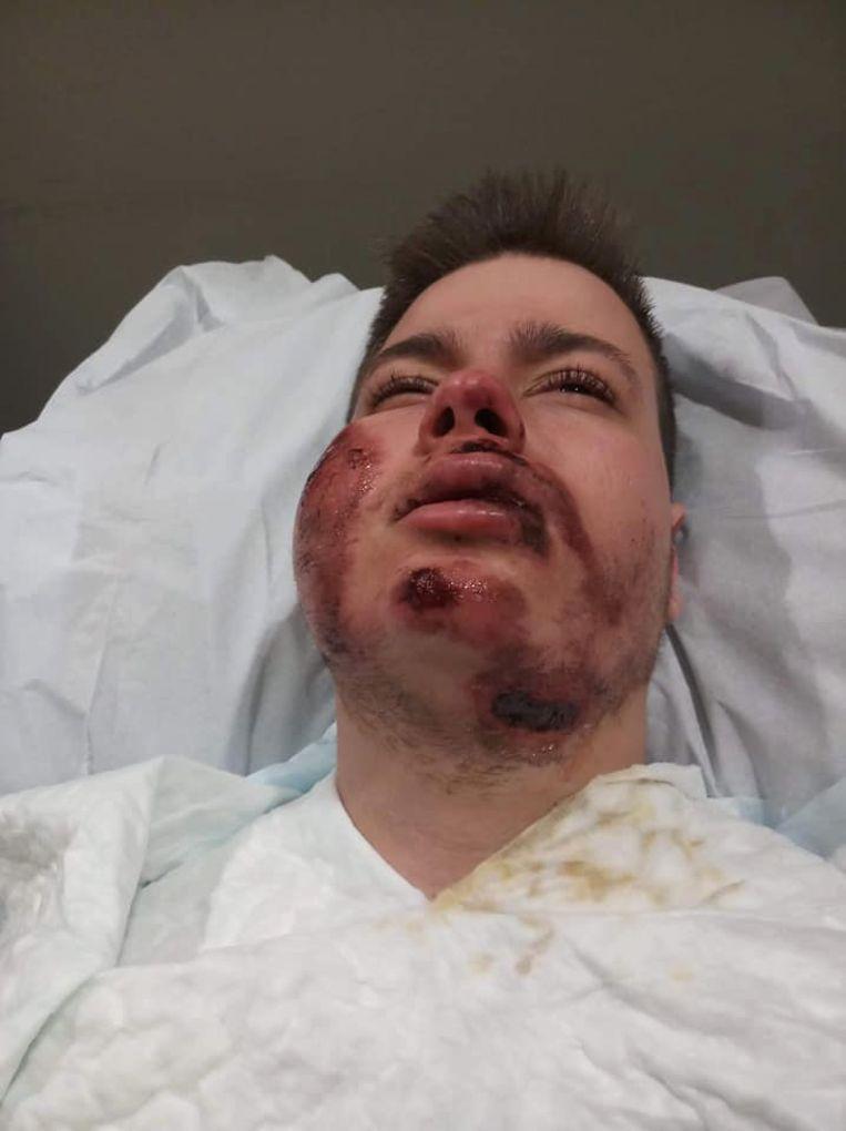 Dwayne Ickmans (19) herstelt in het ziekenhuis van zijn verwondingen.