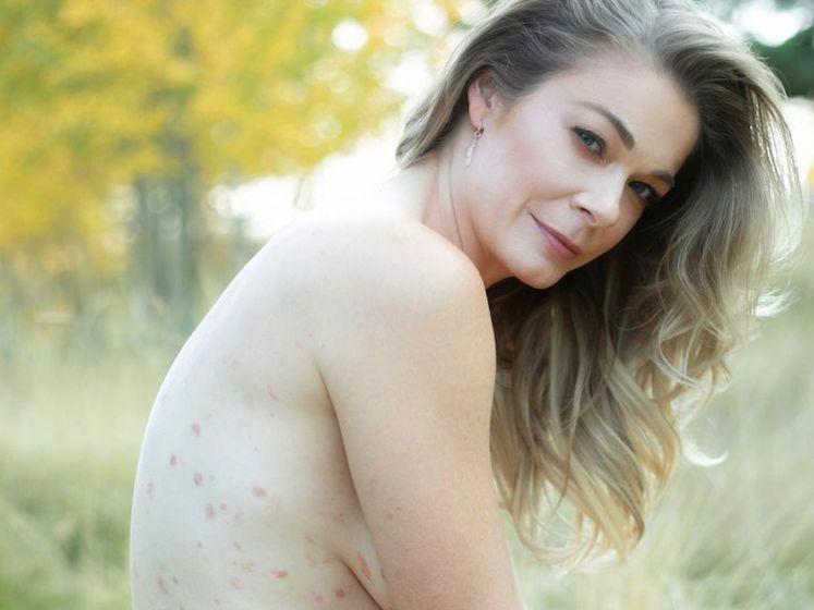 Amerikaanse zangeres poseert naakt om taboe rond psoriasis te doorbreken