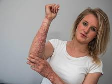 Tessa (24) uit Dalfsen overleeft aanval reuzenkwal maar net