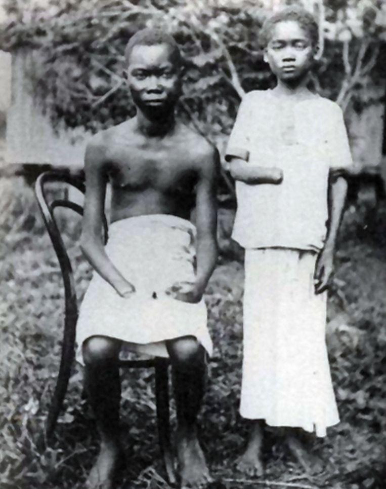 Britse en Amerikaanse kranten toonden begin 20ste eeuw al foto's van Congolezen die waren toegetakeld door het privéleger van Leopold. Beeld Bridgeman Images