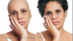 Voor en na: deze prachtige foto's tonen vrouwen die hun haar verloren door ziekte