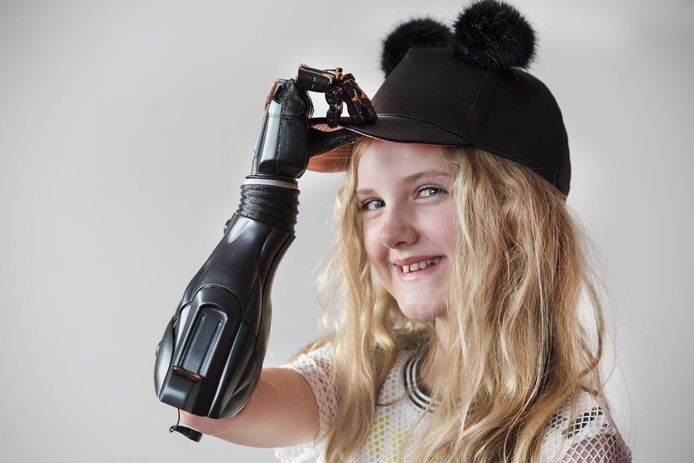 De 10-jarige Britse Tilly Lockey overleefde meningokokken bloedvergiftiging van het type B, maar beide armen moesten wel geamputeerd worden.