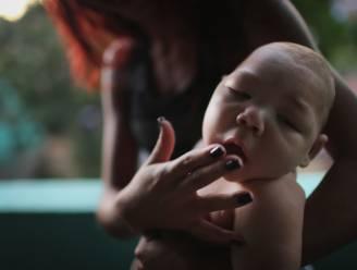 Al meer dan 4.000 misvormde baby's door zikavirus in Brazilië