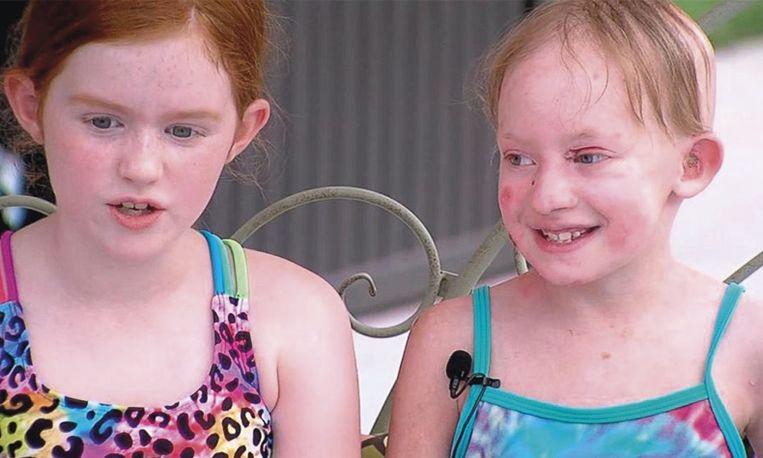 Meisje (9) schiet vriendinnetje met ernstige huidaandoening te hulp