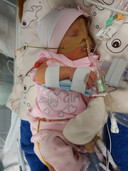 Baby Elsie in het ziekenhuis. ,,Ze was zo jong, nog zo klein en dan zo'n flinke ingreep. Dat is heel wat voor zo'n kleine wurm.''