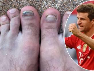 """Thomas Müller toont schrikwekkende foto van zijn voeten: """"Ik moet dringend langs bij Nagelsmann"""""""