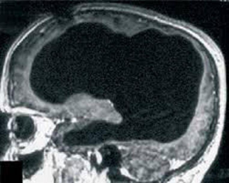 Een hersenscan van de Fransman toont slechts een zeer dunne laag van hersenweefsel. Beeld The Lancet