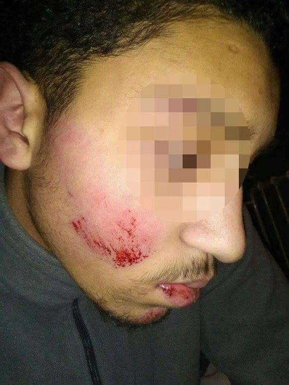 Eén van de foto's op Facebook, die de verwondingen van de jongeman tonen.