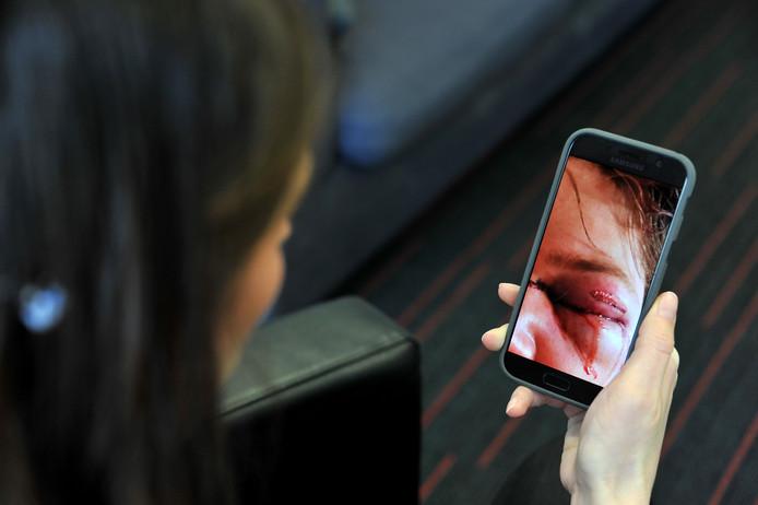 De moeder van de 19-jarige gewonde Sliedrechter wil vanwege de privacy van haar zoon anoniem haar verhaal doen. Op haar telefoon maakte ze destijds foto's van de verwondingen.