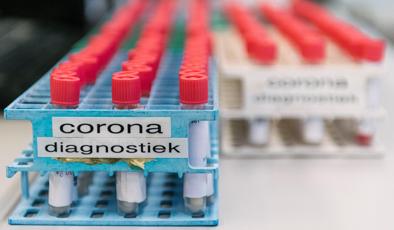 Buisjes met monsters bestaande uit een swab uit de neus en van de keel van mogelijk met het coronavirus besmette mensen. Dit is de eerste stap in de coronatest.