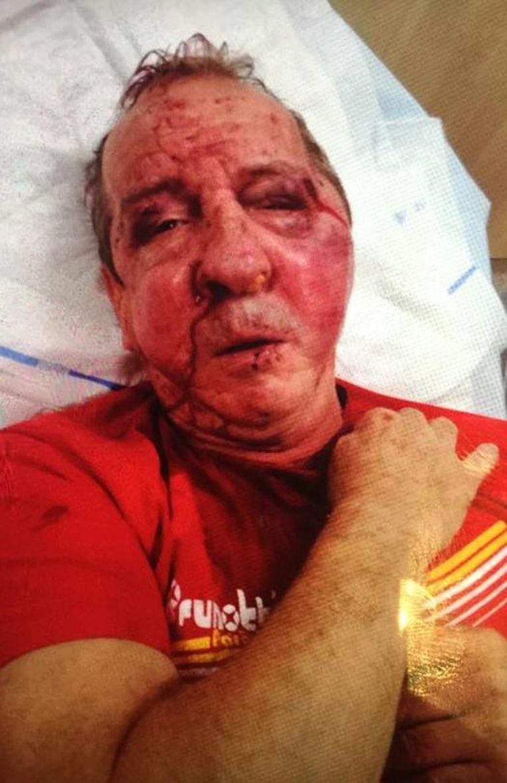 Taxichauffeur Raphaël Spapen werd in elkaar geslagen en liep verschillende breuken in het aangezicht op.