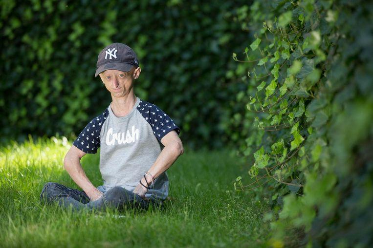 Michiel Vandeweert is een 19-jarige progeriapatiënt, een van de oudste ter wereld.