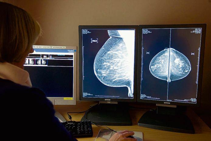 Een radioloog bekijkt digitale röntgenfoto's van een borst.