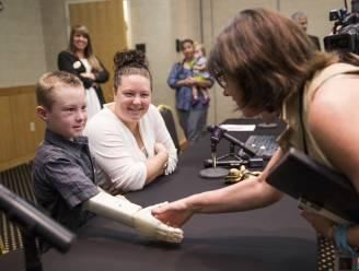Pakkend: Studenten maken met 3D-printer spotgoedkope prothese voor jongen
