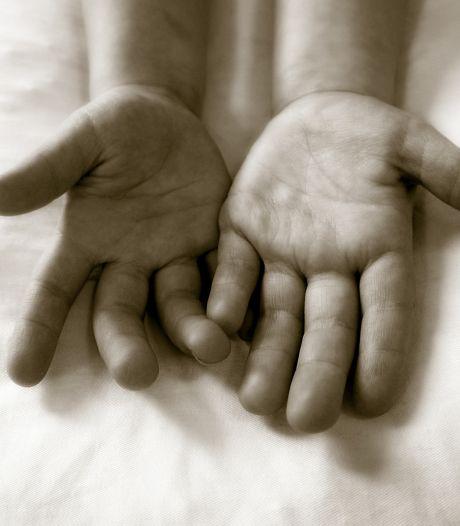 Zonder spalkje wijst mijn vingertop voor altijd schuin naar voren