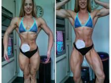 Sa stomie la transforme en bodybuildeuse