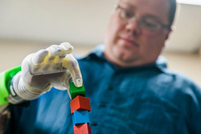 Joe Hamilton, die in 2013 zijn hand verloor bij een vuurwerkongeluk, gebruikt een vervangende robothand om blokjes te stapelen. Beeld null
