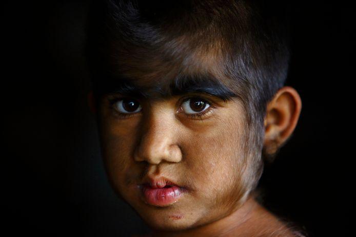 Ter illustratie. Een oudere foto van een meisje met Hypertrichosis-syndroom in Nepal.