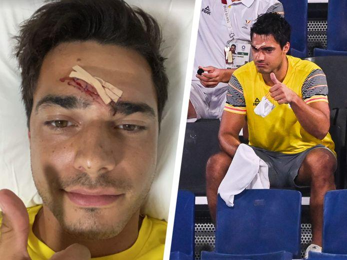 Alexander Hendrickx kreeg een stick tegen z'n hoofd. Intussen deelde hij op Instagram al een foto van de wonde. Volgens de eerste onderzoeken is er van een hersenschudding geen sprake.