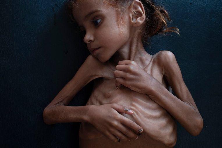 Amal Hussein is op zevenjarige leeftijd gestorven van de honger in een vluchtelingenkamp in Jemen. Beeld Twitter/ Tyler Hicks/ NYT