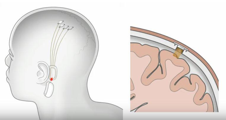 In de zomer van 2019 stelde Musk een nieuwe chip voor die het brein met een computer moet verbinden. Beeld Neuralink
