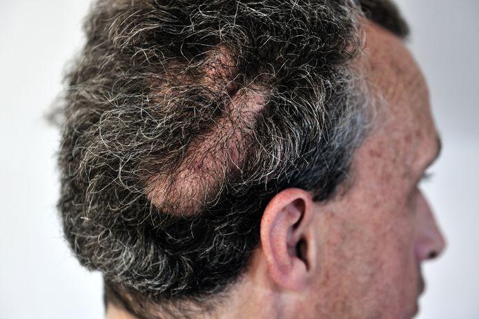 Van Meer heeft tumoren over zijn hele lichaam, zowel uit- als inwendig. Op zijn hoofd groeien een paar grote tumoren, die door de medicatie die hij kreeg bijna helemaal waren geslonken. Nadat hij met de medicatie stopte groeiden de tumoren weer aan.
