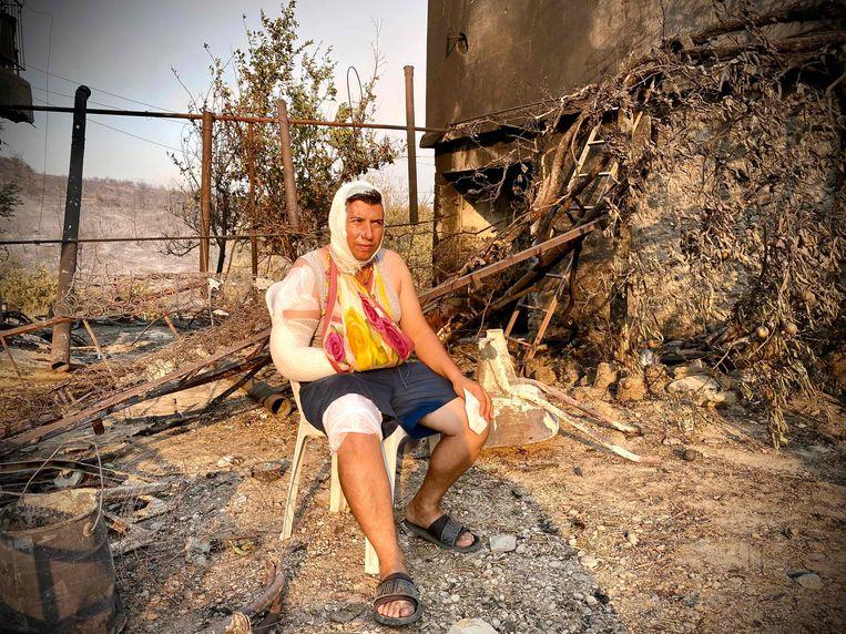 Een gewonde man zit voor een verbrand huis dat getroffen is door de brand. Beeld AFP