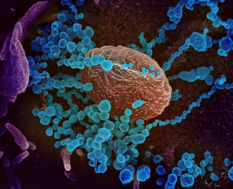 Het coronavirus (de blauwe bolletjes) ontsnapt uit een gekweekte cel. Ingekleurde microscopiefoto. Beeld Reuters