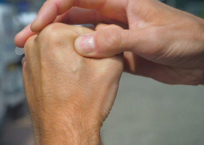 Auf der hand adern Blutgefäße: Adern,