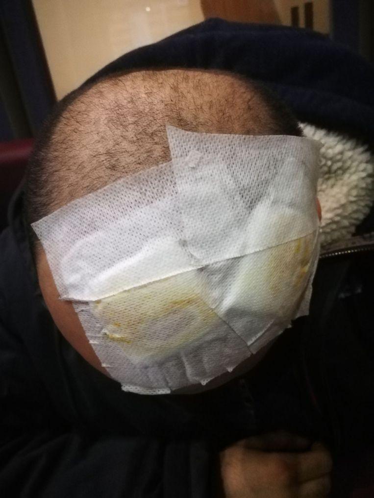 Een van de migranten kreeg klappen op het hoofd. Beeld rv