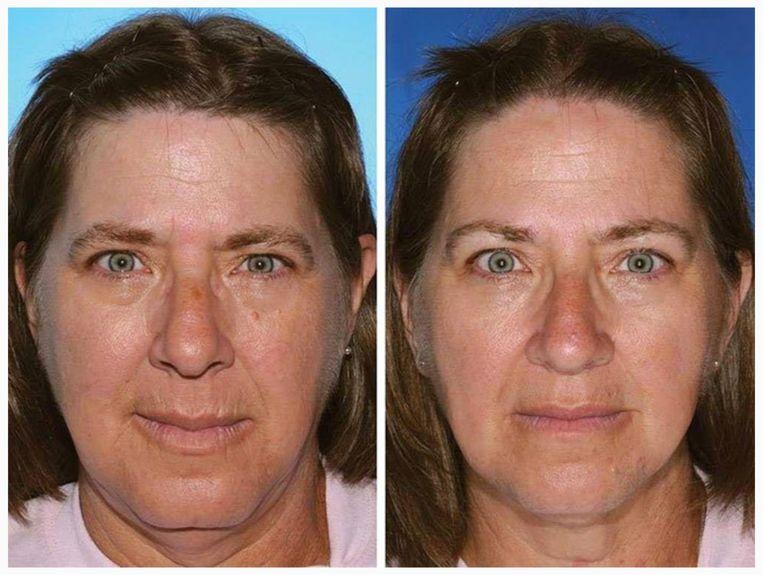 De vrouw links rookte zeventien jaar langer dan haar tweelingzus. Beeld rv