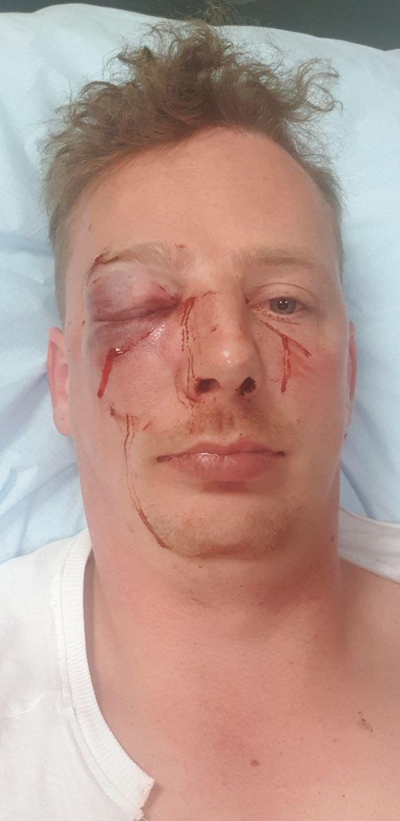 Het slachtoffer belandde in het ziekenhuis.