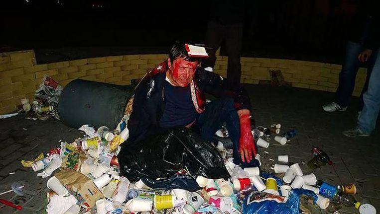 De Trash Bucket Challenge wordt vooral op internet getoond. De vuilnisbakrage geeft Oekraïne een slechte naam, zo vreest minister van Binnenlandse Zaken Arsen Avakov. Beeld rv