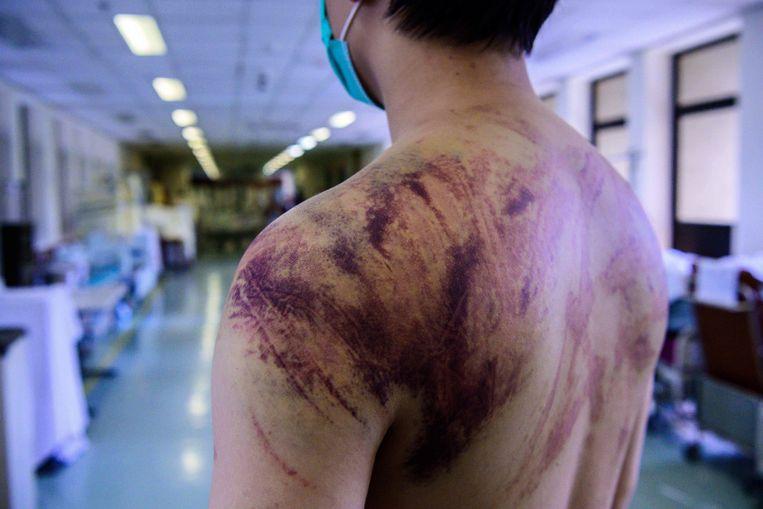 Een inwoner van Yuen Long laat in het ziekenhuis de verwondingen zien die hij heeft opgelopen toen hij door gemaskerde mannen op het metrostation in elkaar werd geslagen. In totaal zijn er 45 mensen gewond geraakt.  Beeld AFP