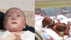 Lichtst geboren baby ooit mag na 5 maanden naar huis