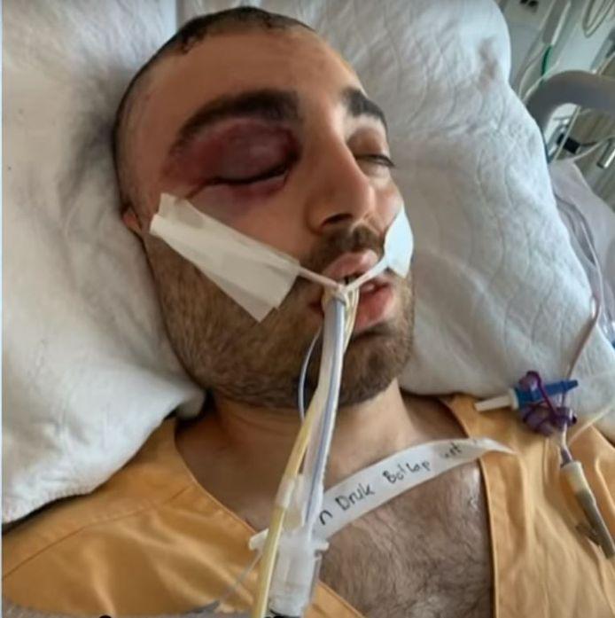 Alleen al in zijn gezicht had het slachtoffer 33 botbreuken.