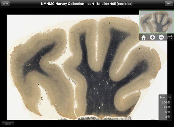 De hersenen van Einstein worden nog steeds bestudeerd.